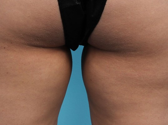 CoolSculpting for Inner Thighs After