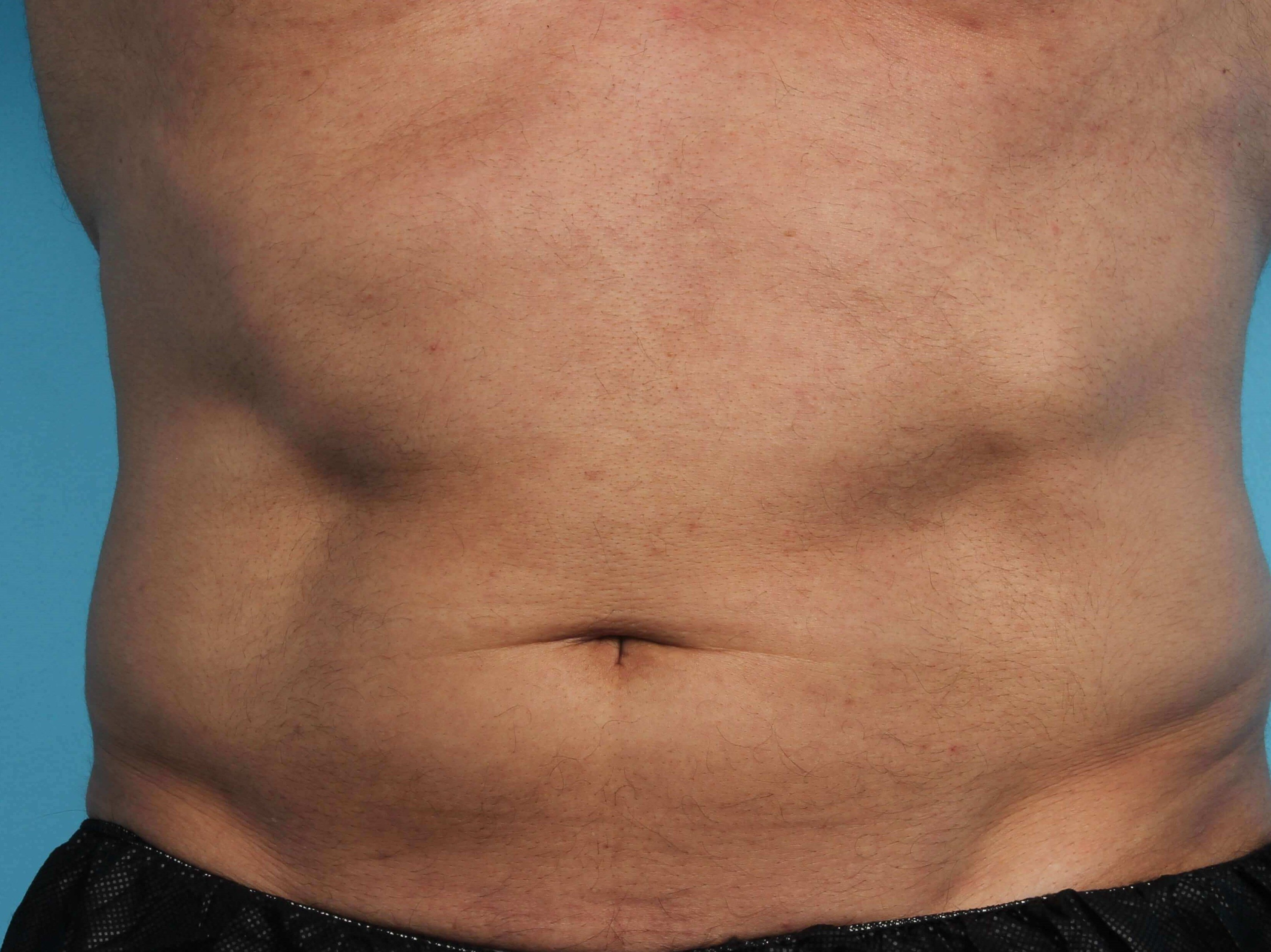 Before and After CoolSculpting & CoolTone Photos