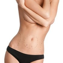CoolSculpting*