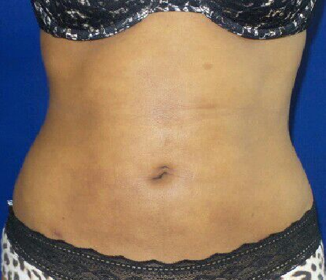 Liposuction of abdomen only After