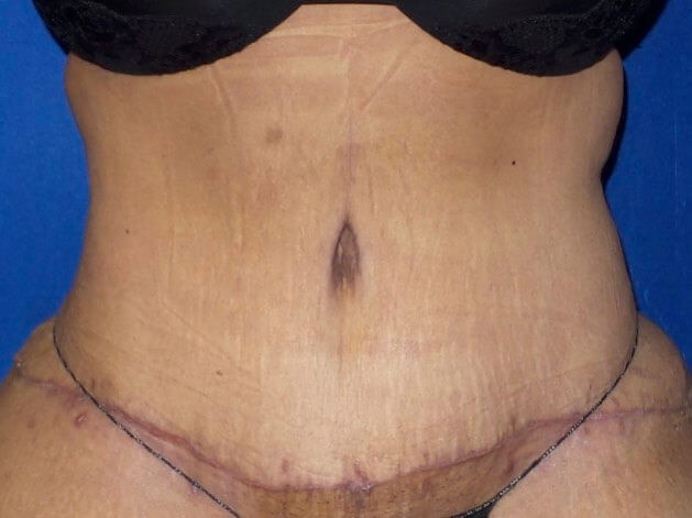 Front abdomen view w/ scar Before