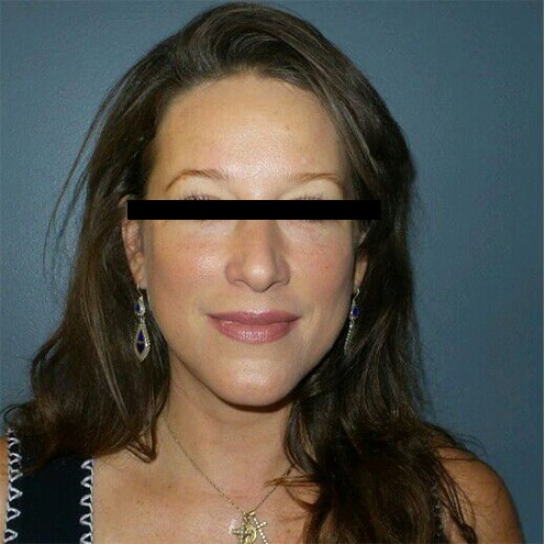 Liquid Facelift Results! After