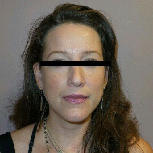 Liquid Facelift Results! Before