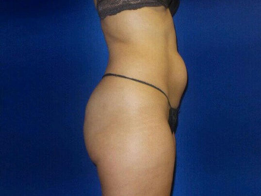 Flatter Tummy in Days! Before