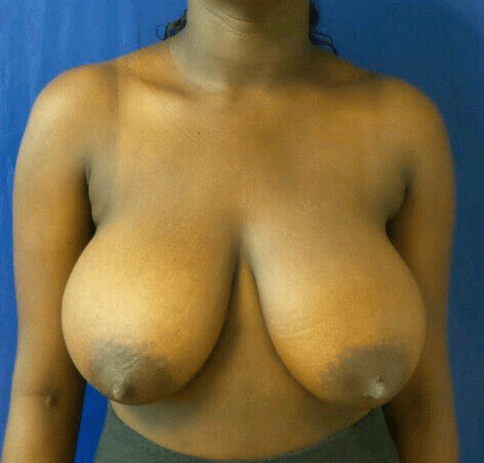 Bilateral breast reduction Before