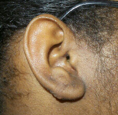 Keloid removal After