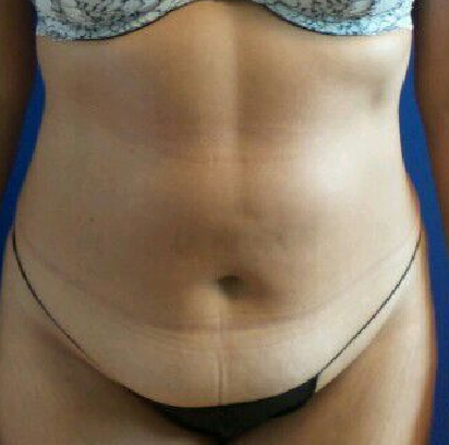 liposuction of the abdomen Before
