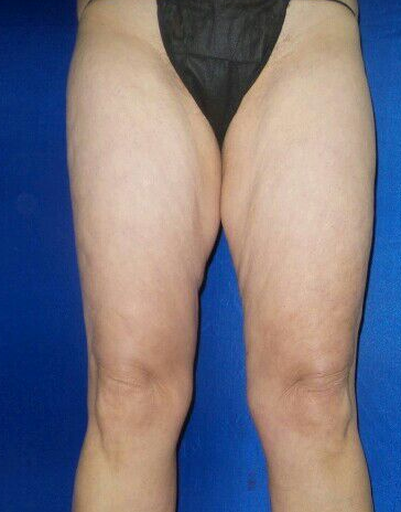 Smart lipo of thighs Before