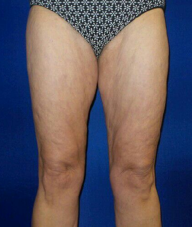 Smart lipo of thighs After