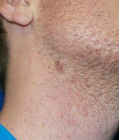 Right neck mole removal After