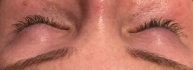 Eye Lash Extension Before