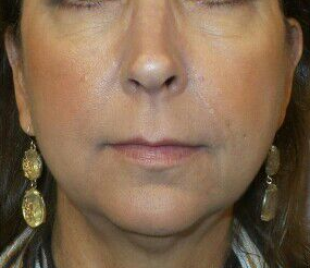 Fillers of Lips, NLF & Cheeks After