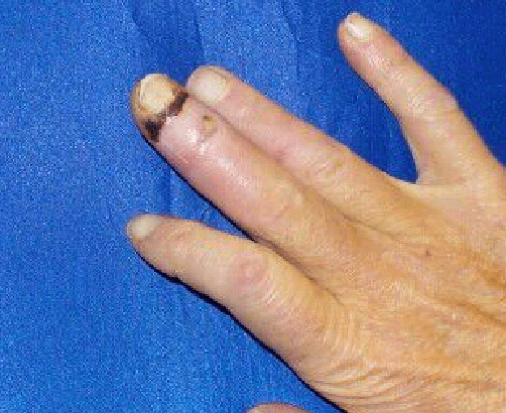 Mallet Finger w/ Open Wound After