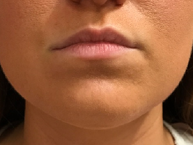 Lip Enhancement with Restylane Before