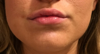 Lip Enhancement with Restylane After