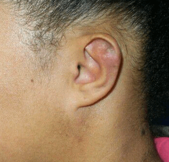 Right Ear After