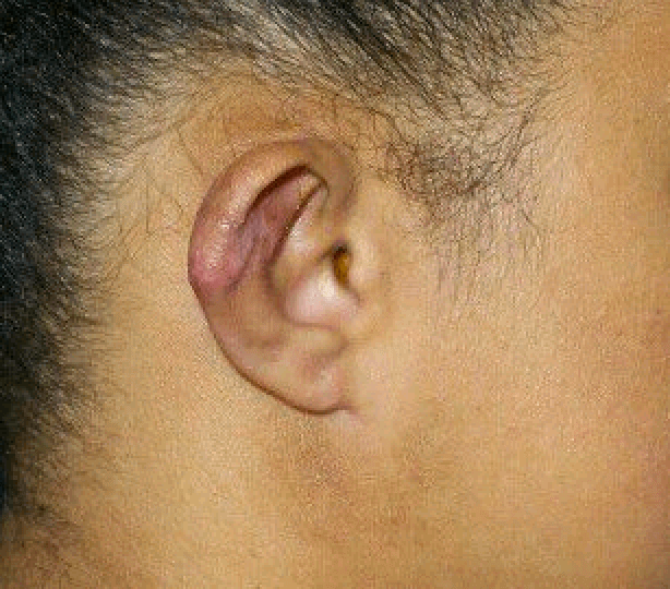 Left Ear After