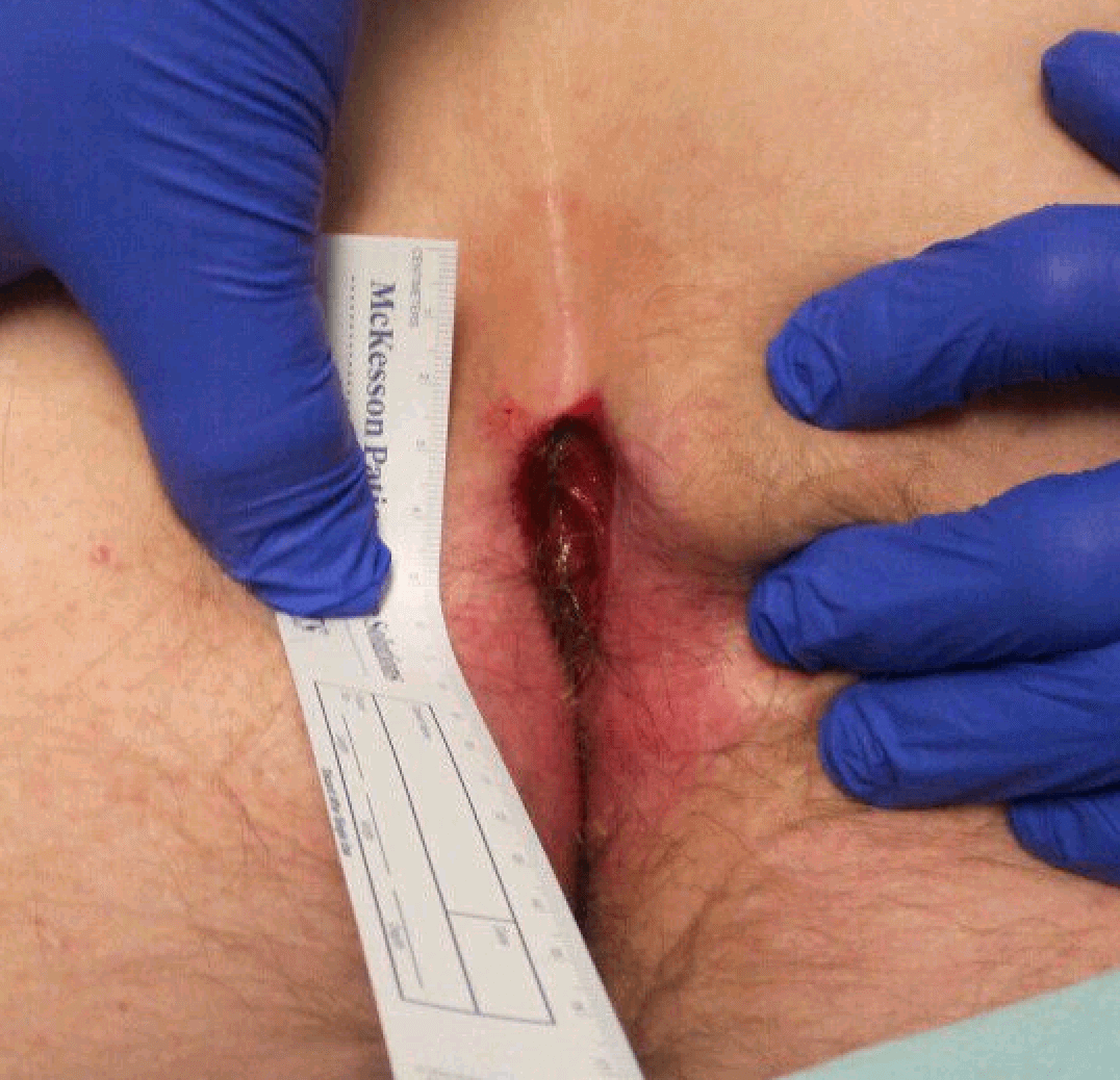 Sacral Wound Before