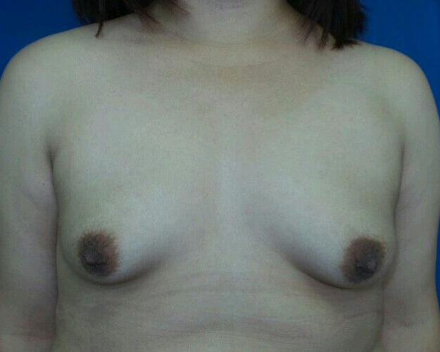 Latina breast enhancement Before