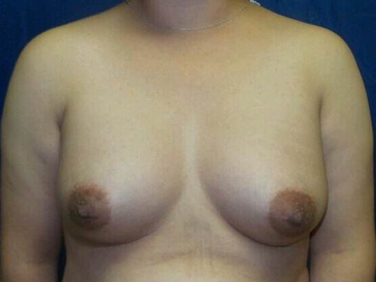Latina breast enhancement After