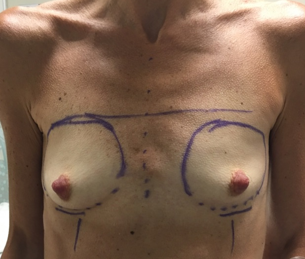 Front View Breast Enlargment Before
