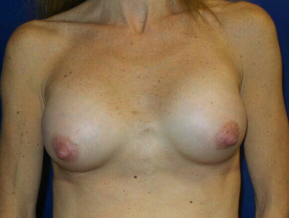 Front View Breast Enlargment After