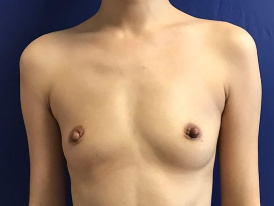 Beautiful Symmetrical Breasts! Before