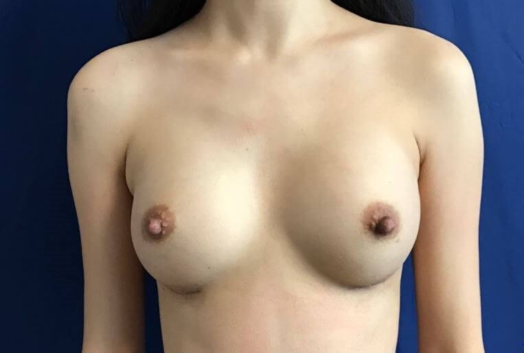 Beautiful Symmetrical Breasts! After