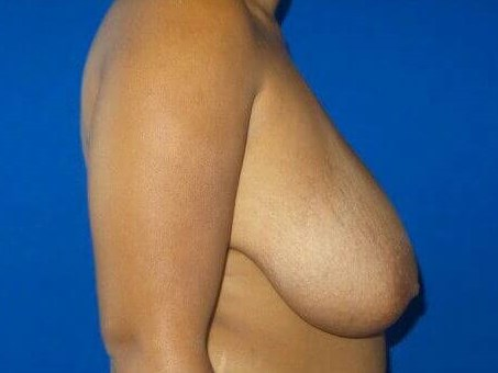 Breasts Lifted and Lighter! Before