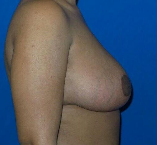 Breasts Lifted and Lighter! After