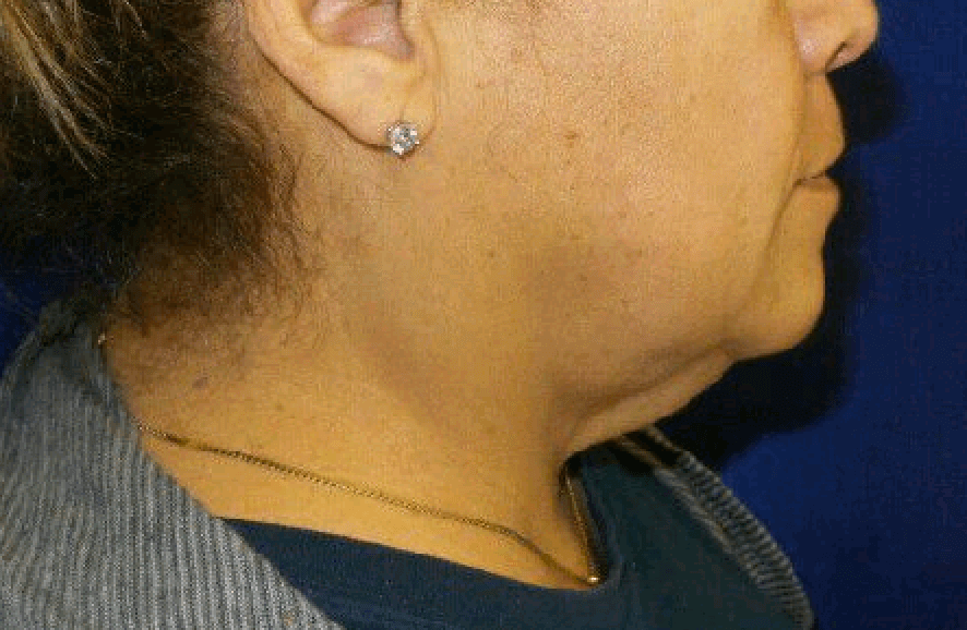 Neck Lift via Precision TX Before