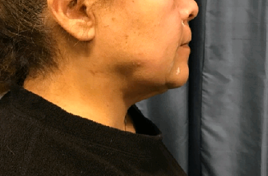 Neck Lift via Precision TX After
