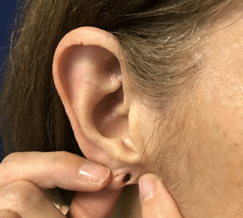 split ear lobe repair Before