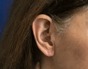 split ear lobe repair After