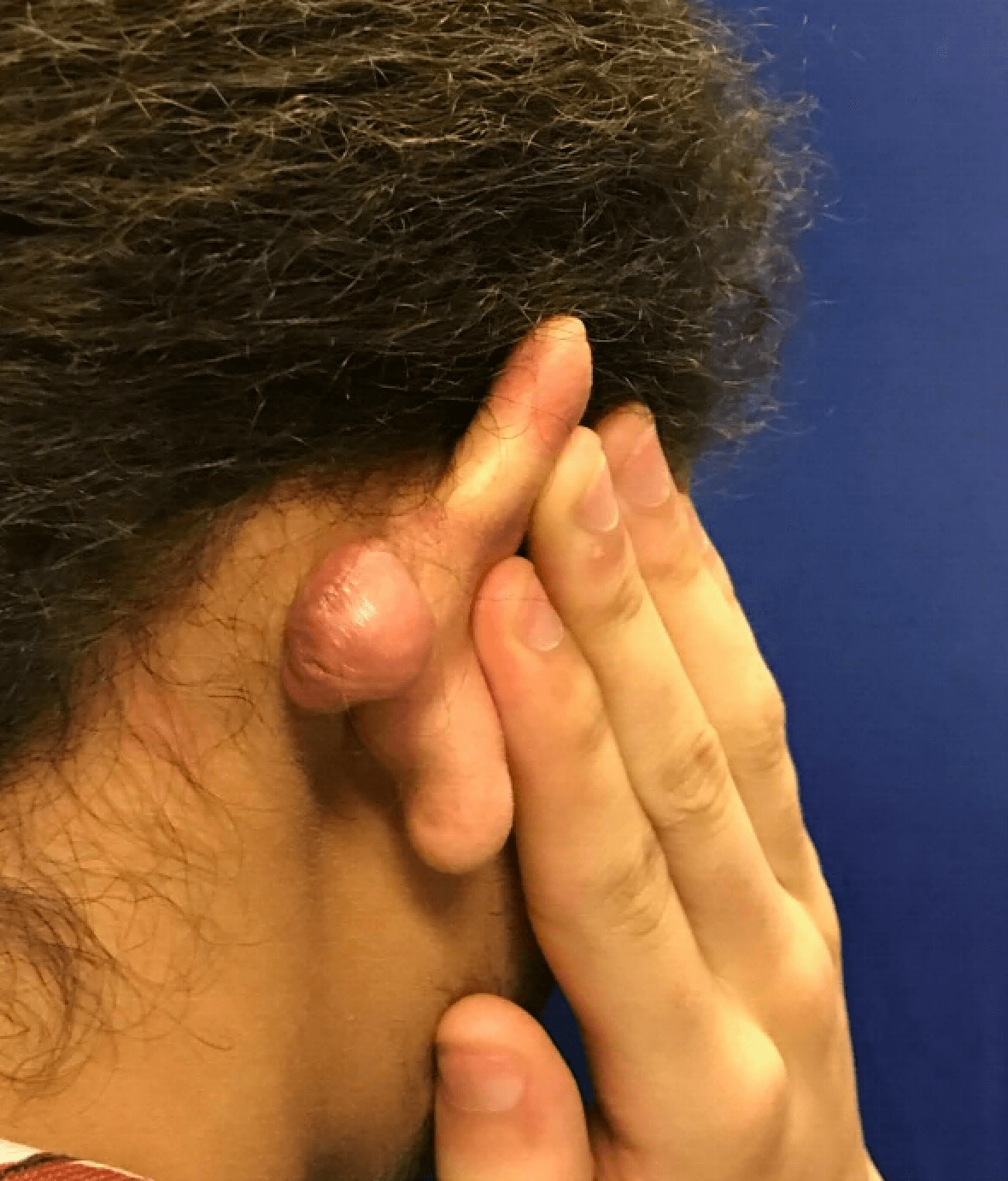 Beautiful keloid removal Before
