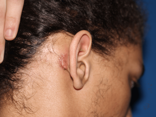 Beautiful keloid removal After
