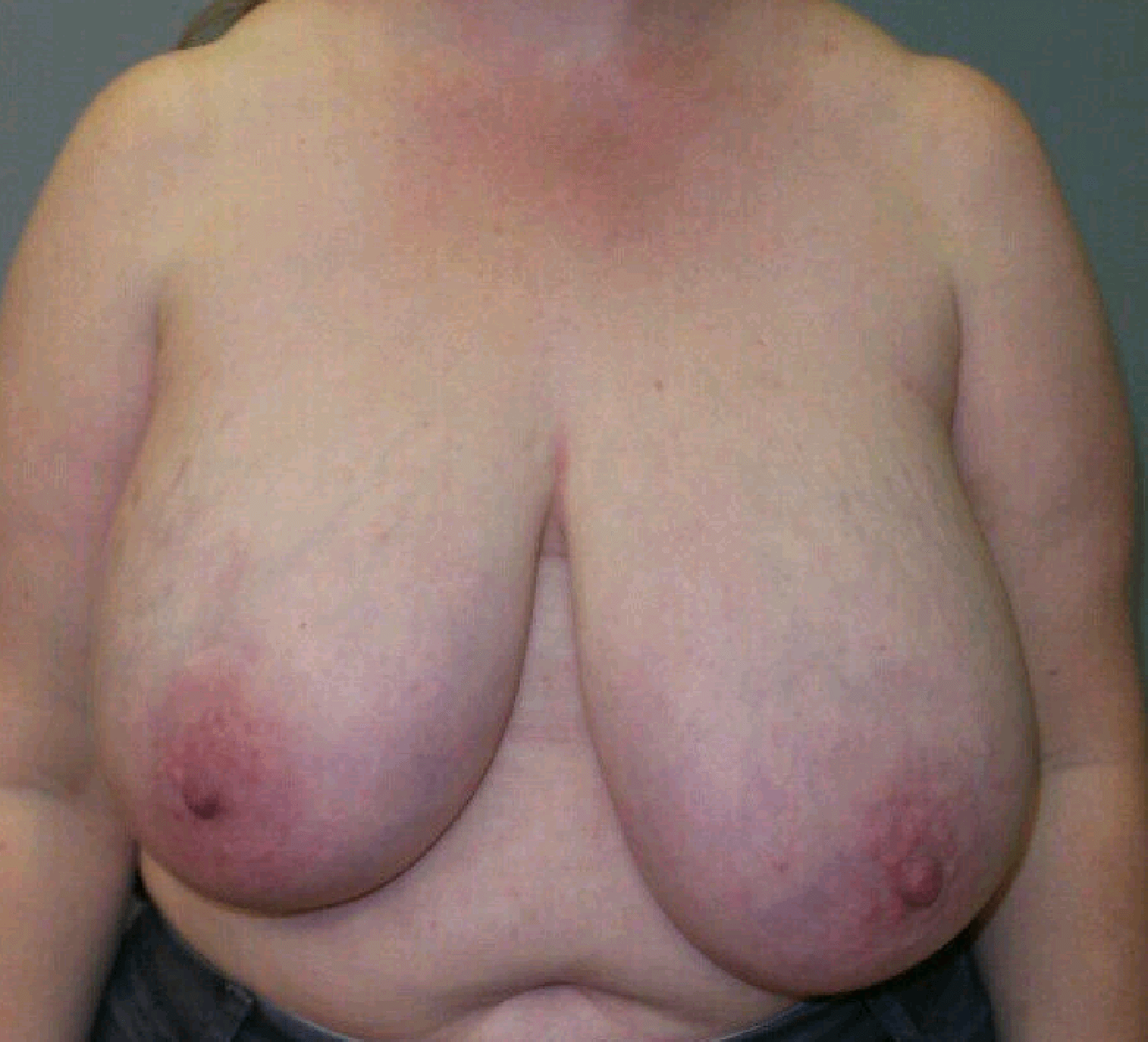 Reduction Mammoplasty Before