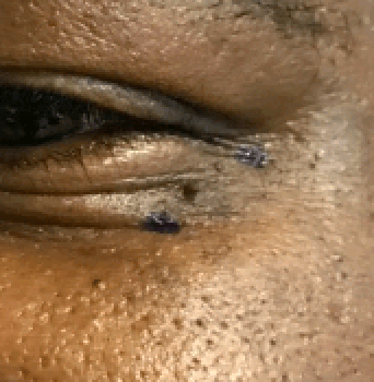 Mole left lower eyelid Before