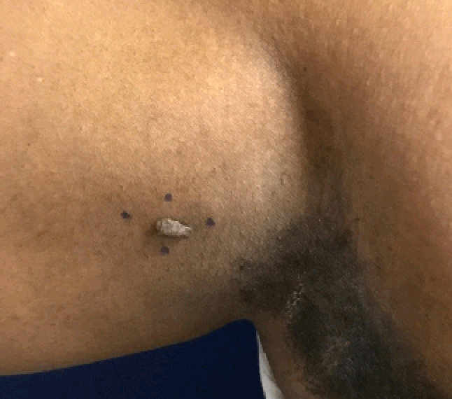 right axilla / arm skin tag Before