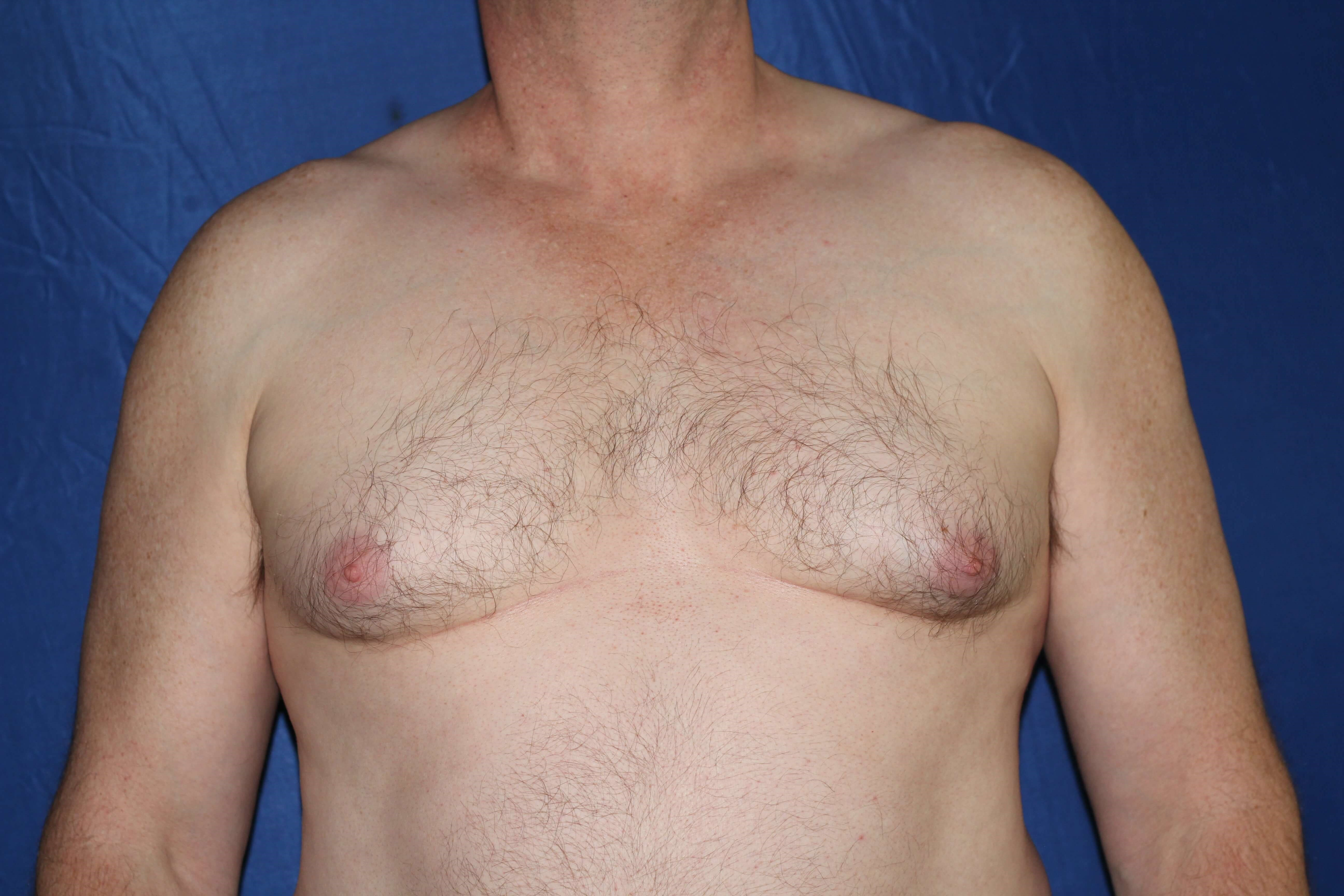 Male Breast Reduction Success Before