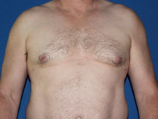 Male Breast Reduction Success After