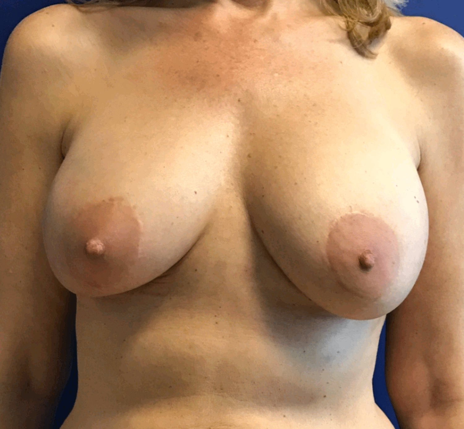 Breast implant rupture. After