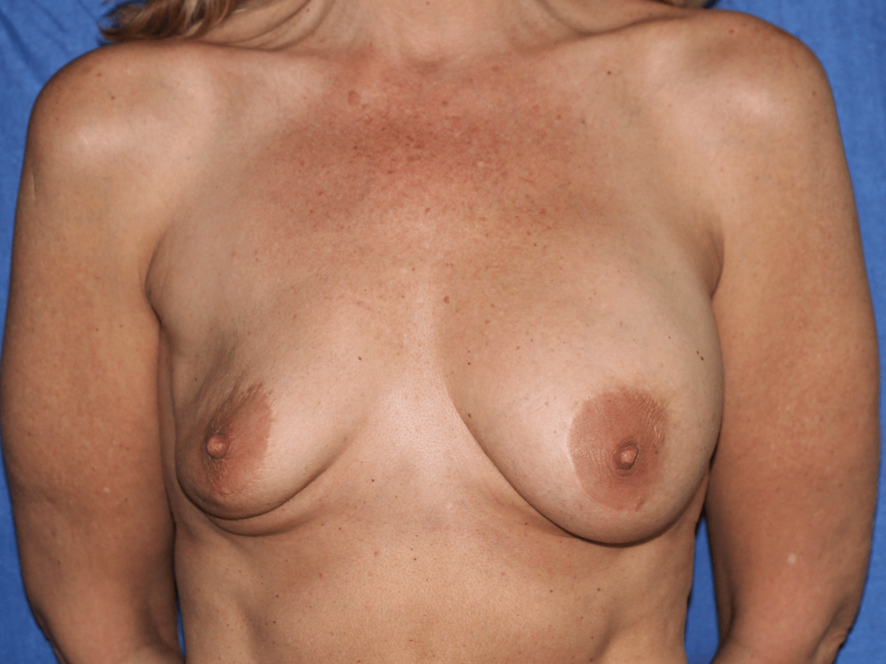 Breast Implant Rupture Before