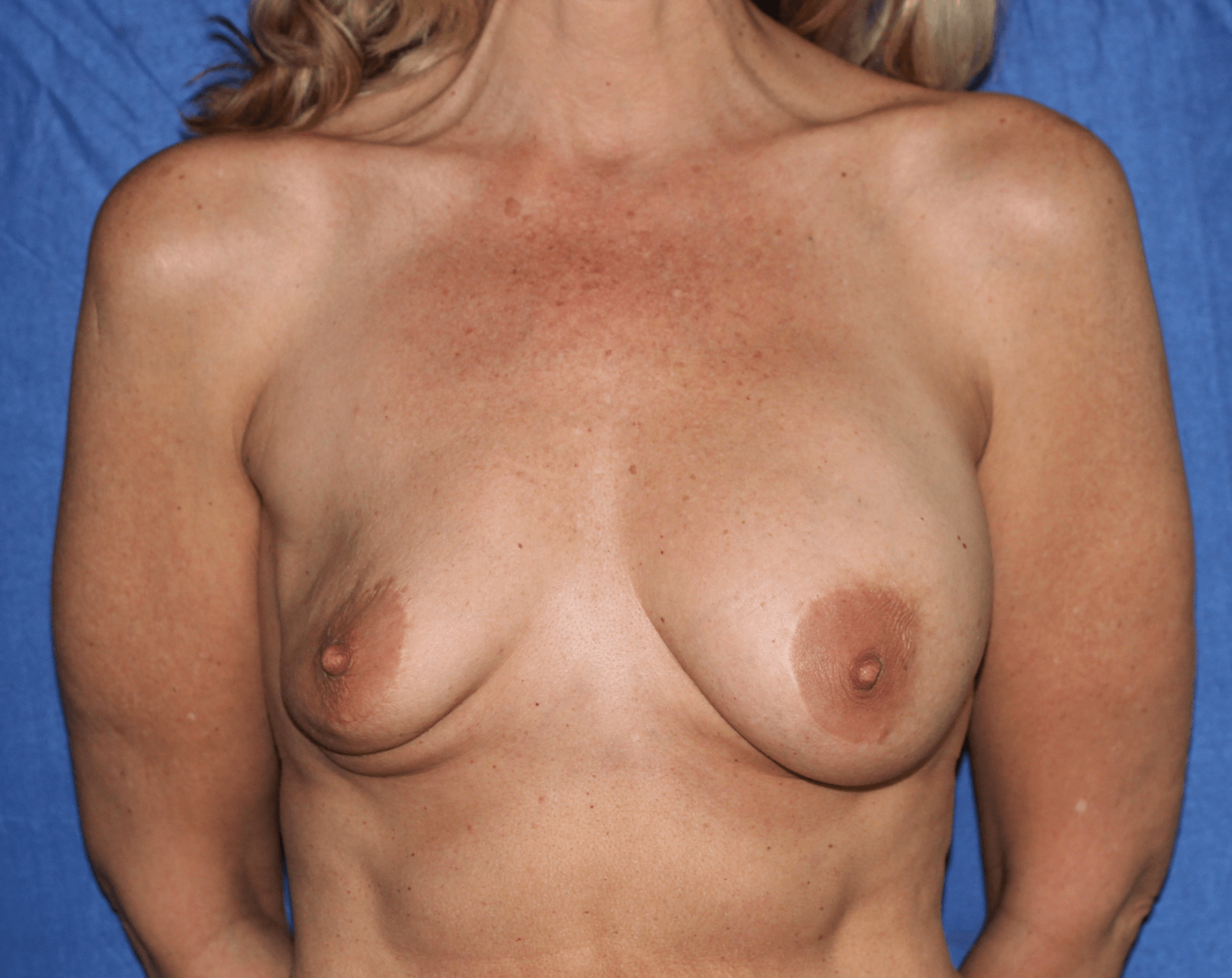 Breast implant rupture. Before