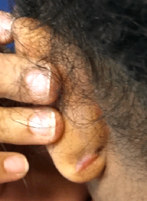 left ear keloid removal After