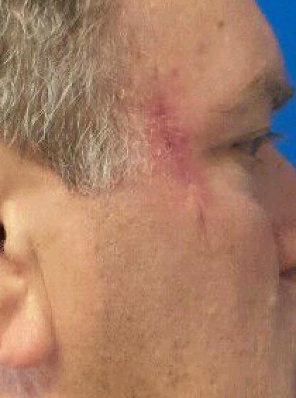 Right Temple Melanoma Skin Cancer Surgery