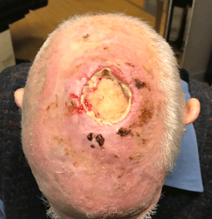 Skin Cancer Surgery Before