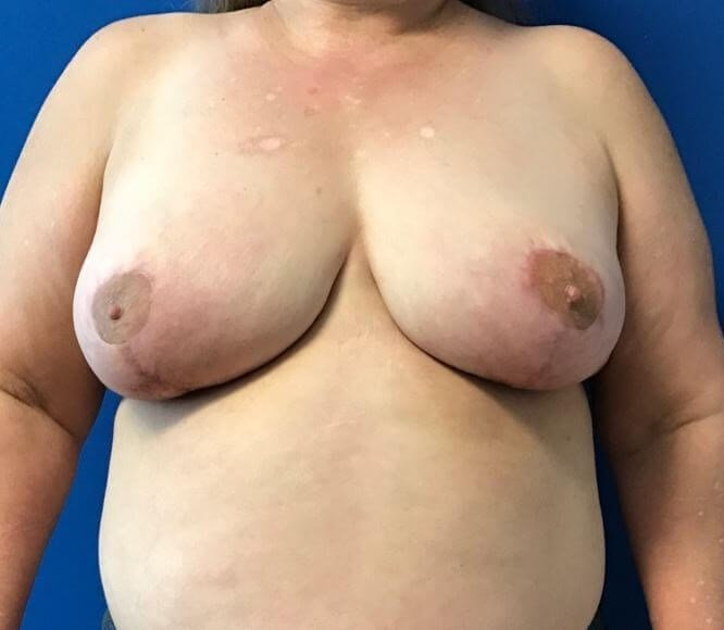 Mammoplasty & Mastopexy After