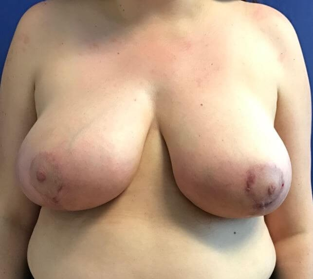 Front View Breast Reduction After