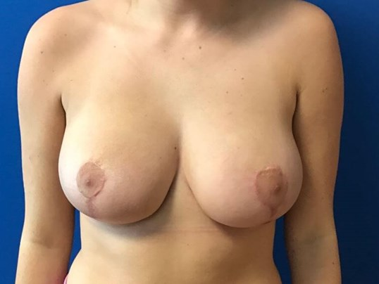 3 Month Post Op BRM After